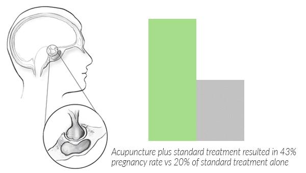 hyperprolactinemia-prolactinoma